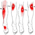 Gastroc Trigger Points Refer to the Foot