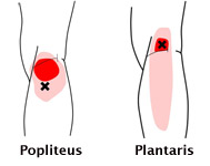 popplantthm